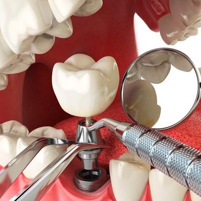 Фотография 3d модели имплантации зуба в челюсть