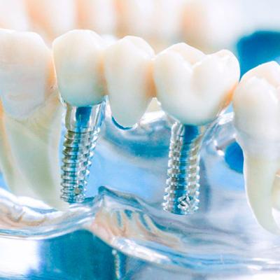 Фотография протезирования зубов