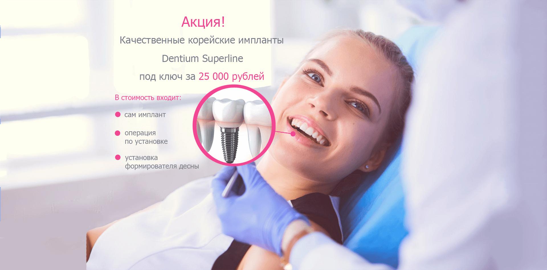 Акция на зубные импланты под ключ - фото